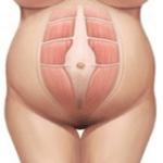 diastasis abdominal embarazo